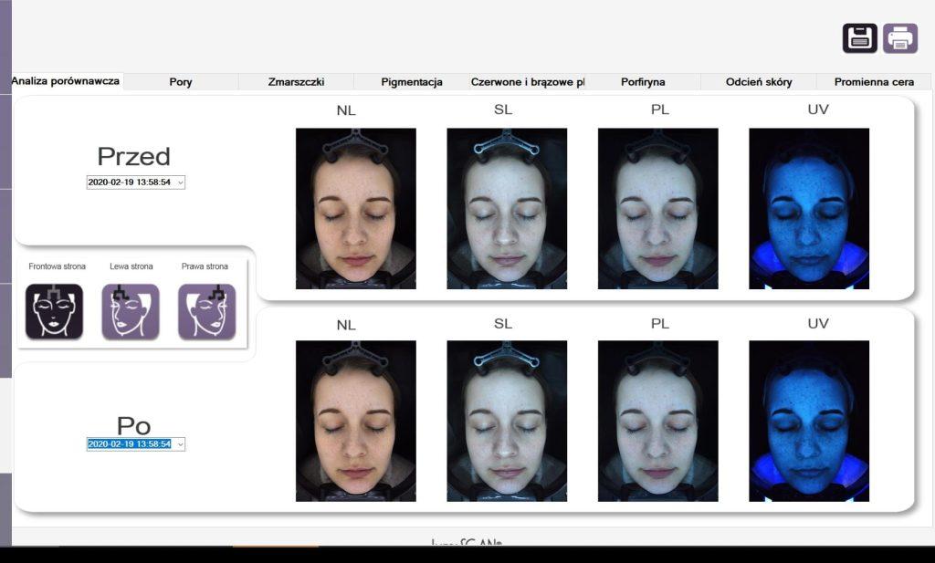 kosmetologia XX! Wieku - SIŁA diagnozy PODCZAS konsultacji Z LUMISCAN - 11