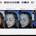 analiza skóry Lumiscan, konsultacja na twarz, Katowice