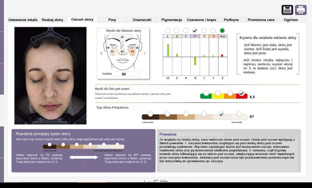 kosmetologia XX! Wieku - SIŁA diagnozy PODCZAS konsultacji Z LUMISCAN - 19
