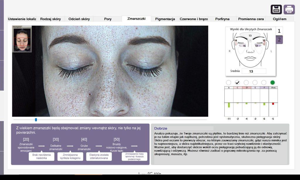 kosmetologia XX! Wieku - SIŁA diagnozy PODCZAS konsultacji Z LUMISCAN - 23