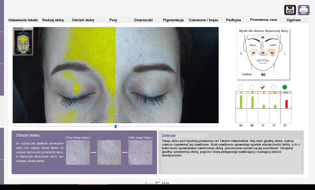 kosmetologia XX! Wieku - SIŁA diagnozy PODCZAS konsultacji Z LUMISCAN - 15