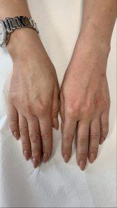 karboksyterapia dłonie, rewitalizacja, odmłodzenie Katowice anpaTu