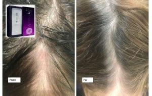 dr CYJ hair filler anpatu efekty Katowice wypadanie włosów