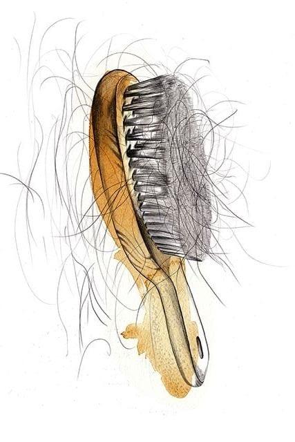 Wypadające włosy - kiedy powinno mnie to niepokoić? - 3