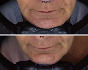 fala uderzeniowa STORZ modelowanie owalu twarzy, Katowice, anpaTu