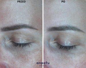 karboksyterapia cienie pod oczami