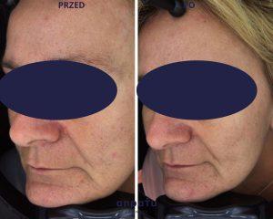 fala uderzeniowa STORZ modelowanie owalu twarzy