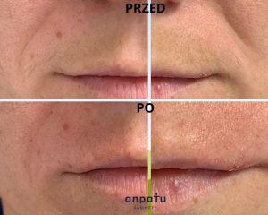 depilacja pastą cukrową wąsik